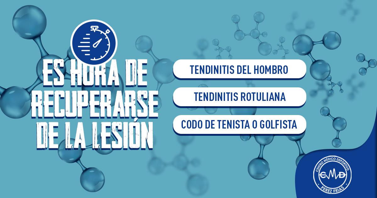 Fisioterapia avanzada en Málaga